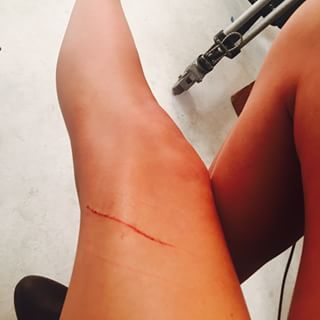 Evidence #12A: A cat scratch to the leg.